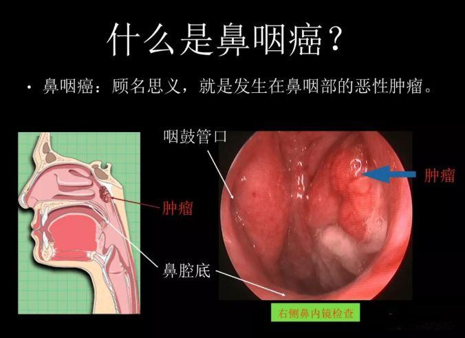 鼻咽癌.JPG